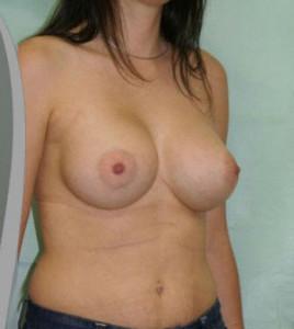 breastaug13a_02