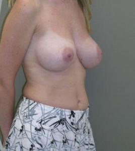 breastaug25b_02