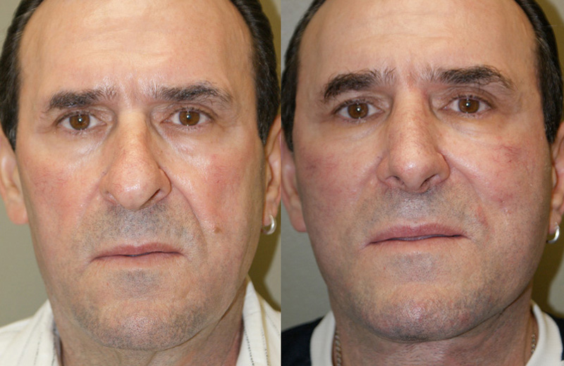 Facelift Before Amp After Pictures Chicago Mae Plastic Surgery