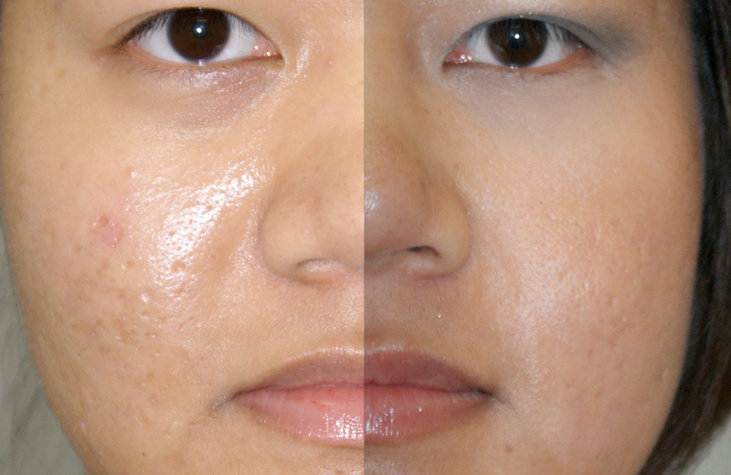 Laser Resurfacing Before Amp After Photos Mae Plastic Surgery