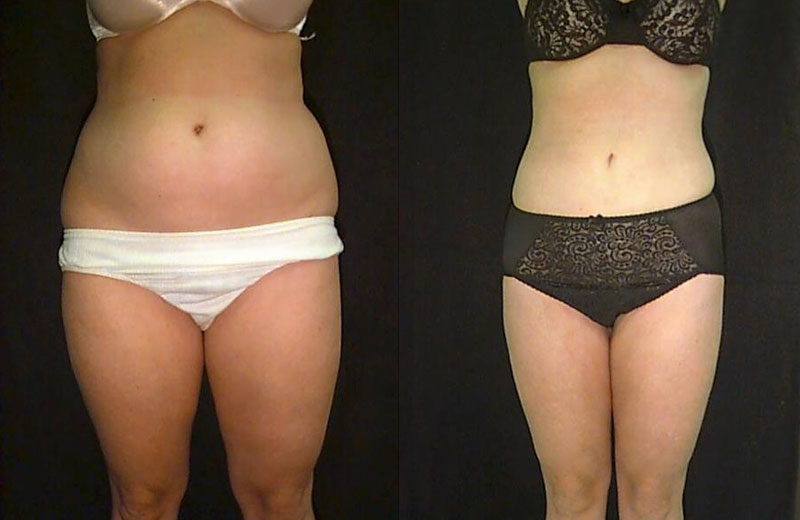 Liposuction Before Amp After Pictures Mae Plastic Surgery