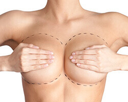 Breast Plastic Surgery Before and After Pictures