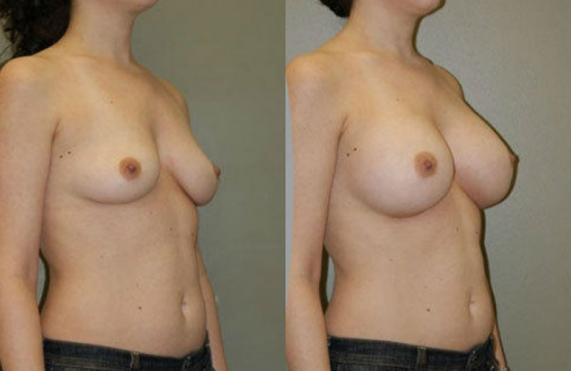 Breast Surgery Chicago Before and After