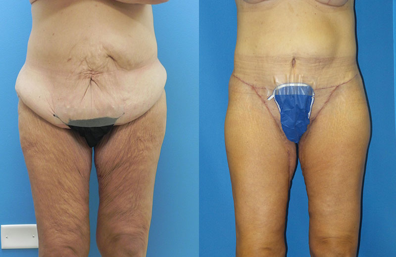 Thigh Lift Before Amp After Pictures Mae Plastic Surgery