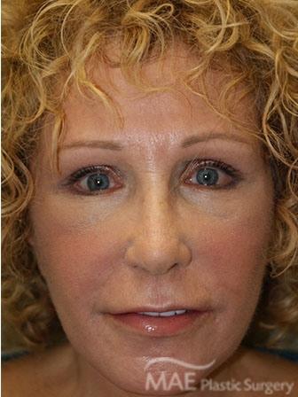 Face Lift Case 5505 Mae Plastic Surgery Chicago Il