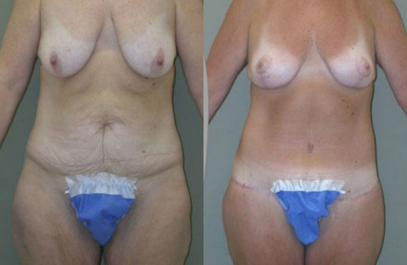 Breast lift surgery chicago