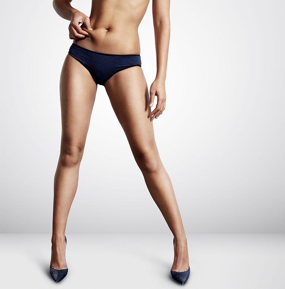 Liposuction Chicago Model